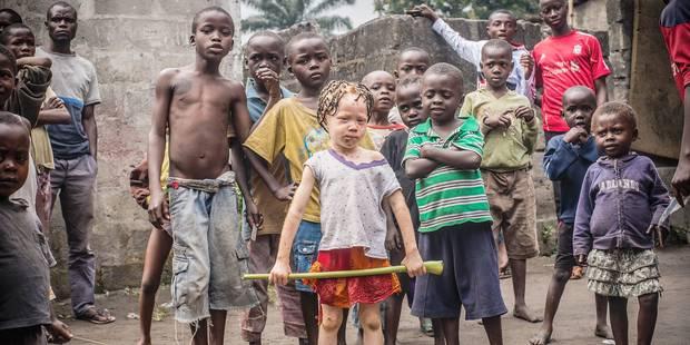 Les albinos de RDC entre ombre et lumière - La Libre