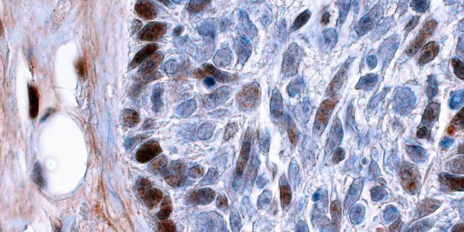 Nouveau coin de voile levé sur le cancer
