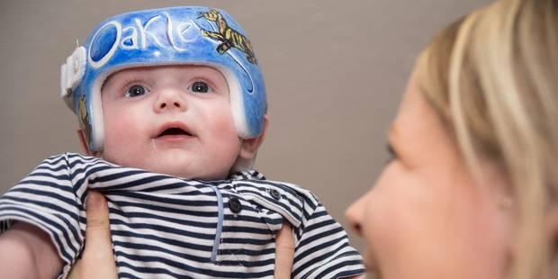 e832214e528a Une épidémie de bébés à tête plate  - La Libre