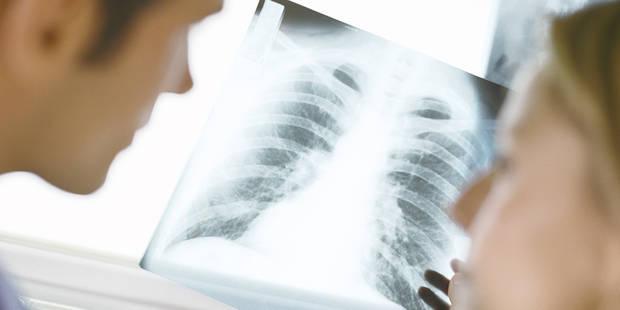 Poumon du fumeur: N'accordez pas toute votre attention à ceux qui crient le plus fort! (OPINION) - La Libre